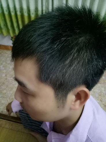 Bí quyết để tóc mọc nhanh sau 4 tháng của chàng kỹ sư điện tử - 2