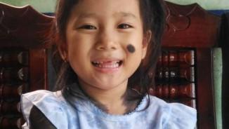 """Bé gái 5 tuổi mọc lông đầy mình ở Cà Mau: """"Con ngứa và đau lắm"""""""