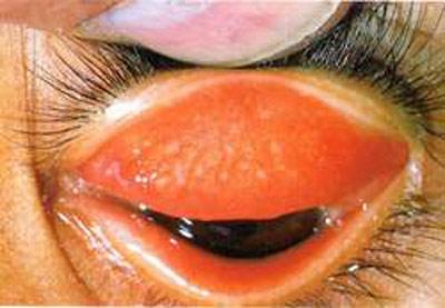 Hiểm họa mù lòa do mắt hột - 1