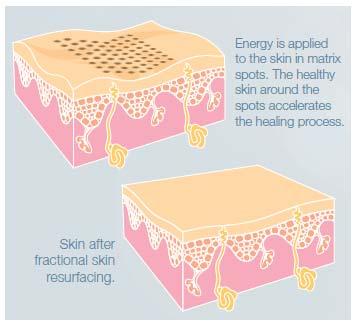 Tẩy bỏ sẹo lõm sau 3-6 lần điều trị - 1