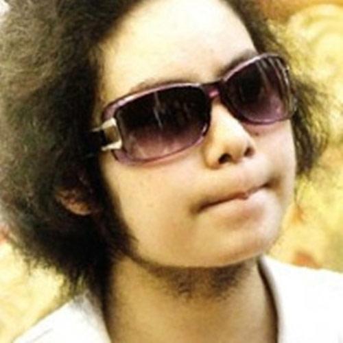 Cô bé 14 tuổi mọc râu quai nón - 2
