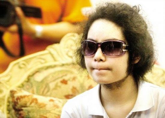 Cô bé 14 tuổi mọc râu quai nón - 1