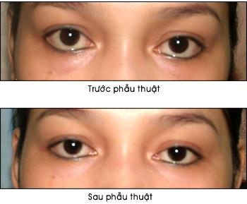 Lấy mỡ mắt chống sụp mí và bọng mắt - 2