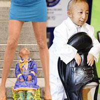 Những người lùn nhất thế giới