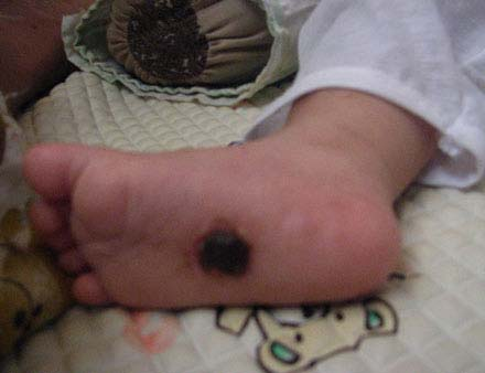 Hình ảnh về bé 9 tháng tuổi bị hành hạ dã man - 2