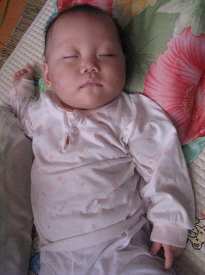 Hình ảnh về bé 9 tháng tuổi bị hành hạ dã man - 1