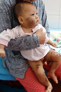 Bé gái 9 tháng tuổi và 90 ngày tra tấn - 1