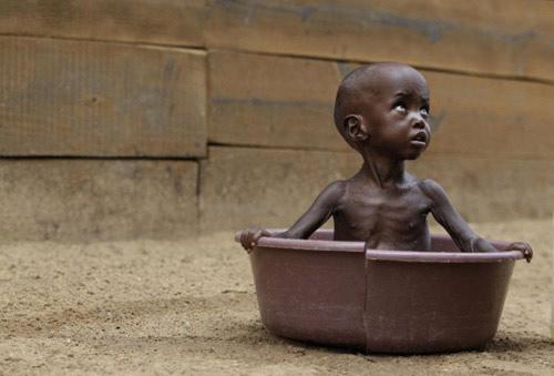 """Chùm ảnh: Châu Phi """"kêu"""" đói! - 2"""