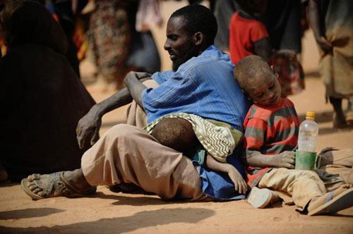 """Chùm ảnh: Châu Phi """"kêu"""" đói! - 4"""