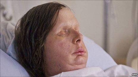 Thay mới gương mặt sau 2 năm cấy ghép - 2