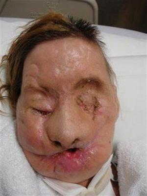 Thay mới gương mặt sau 2 năm cấy ghép - 1