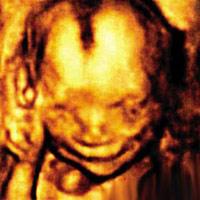 Thai nhi 4 tháng cười toét trong bụng mẹ