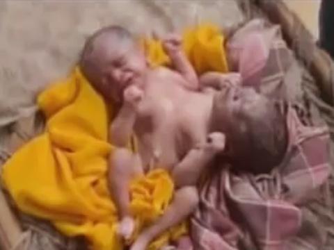 Video: Bé sơ sinh 2 đầu, 4 tay 4 chân - 3