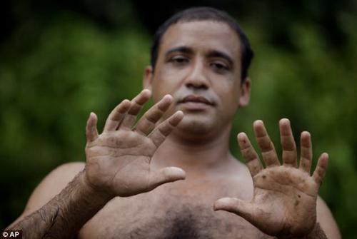 Người có 24 ngón tay, chân - 1