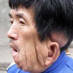 """Tin tức trong ngày - Người đàn ông có khuôn mặt """"tan chảy"""" ở TQ"""