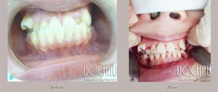 Chỉnh hình răng để hoàn thiện vẻ đẹp khuôn mặt - 6