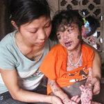 Phi thường - kỳ quặc - Bé 9 tuổi có hàng nghìn khối u trên người tại Hà Nam