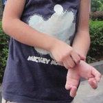 """Phi thường - kỳ quặc - Xót xa cậu bé có """"bàn tay bướm"""""""