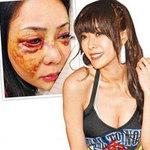 Thời trang - Người mẫu Đài Loan bị bạn trai hành hung