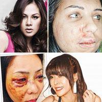 Người mẫu bị đánh vì không biết tự vệ?