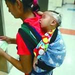 Sức khỏe đời sống - Bé gái hơn 1 tuổi ngực to như thiếu nữ