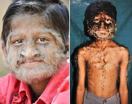 Những căn bệnh kỳ quái nhất hành tinh - 3