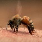 Tin tức trong ngày - Bé trai 4 tuổi bị ong vò vẽ đốt 110 nốt