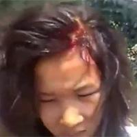 Kinh hoàng nữ sinh đánh nhau chảy máu