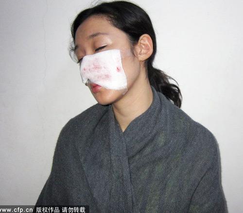 Nữ diễn viên TQ bị chó cắn rách mặt - 2