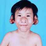 """Phi thường - kỳ quặc - Cậu bé mang khuôn mặt """"Trư Bát Giới"""""""