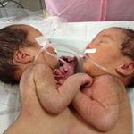 Tin tức trong ngày - Hai bé gái song sinh dính liền bụng ngực