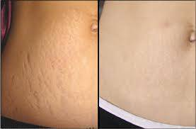 Giảm mỡ bụng và trị rạn da sau sinh - 6