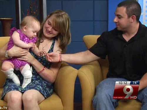 Bệnh lạ: Bé gái 9 tháng tuổi không có da chân - 2