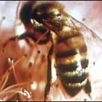 Tin tức trong ngày - Cứu sống bé 4 tuổi bị ong vò vẽ đốt 110 nốt