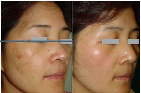 Xóa nhăn, tái tạo da với công nghệ tế bào gốc - 3