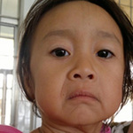 Sức khỏe đời sống - Cháu bé 3 tuổi có khuôn mặt như bà già 60
