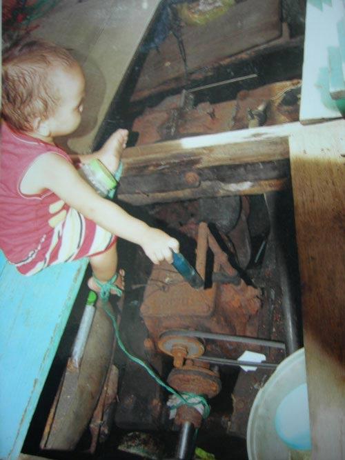 Nối liền bàn chân đứt rời cho bé 3 tuổi - 2