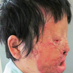 Sức khỏe đời sống - Trả lại khuôn mặt sau 9 giờ phẫu thuật