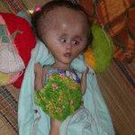 Sức khỏe đời sống - Bệnh lạ, bé 2 tuổi đầu to hơn nồi cơm điện