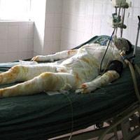 Hất xăng thiêu 11 người: mẹ hung thủ đã chết
