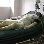 An ninh Xã hội - Hất xăng thiêu 11 người: mẹ hung thủ đã chết