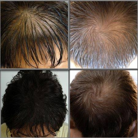 Bí quyết cho tóc đẹp, dày và bóng mượt - 4