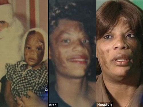Mỹ: Bị mẹ vứt vào đám cháy khi vừa chào đời - 1