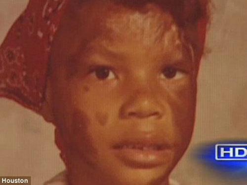 Mỹ: Bị mẹ vứt vào đám cháy khi vừa chào đời - 2