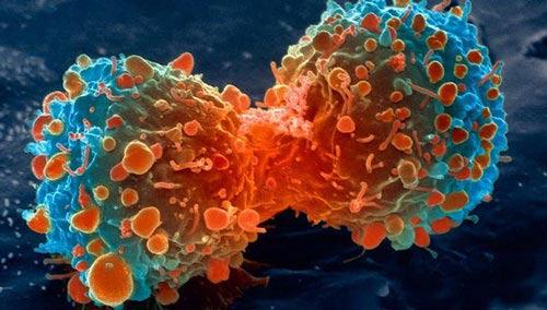 Đột phá trong chữa bệnh ung thư - 1