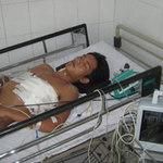 Sức khỏe đời sống - Ca mổ thần kỳ, cứu sống bệnh nhân bị đâm thủng tim