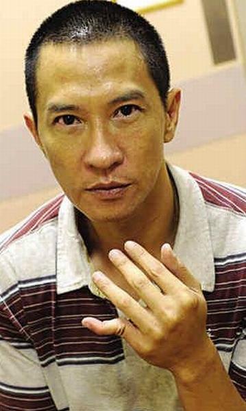 Trương Gia Huy đứt lìa ngón tay vì quyền anh - 8