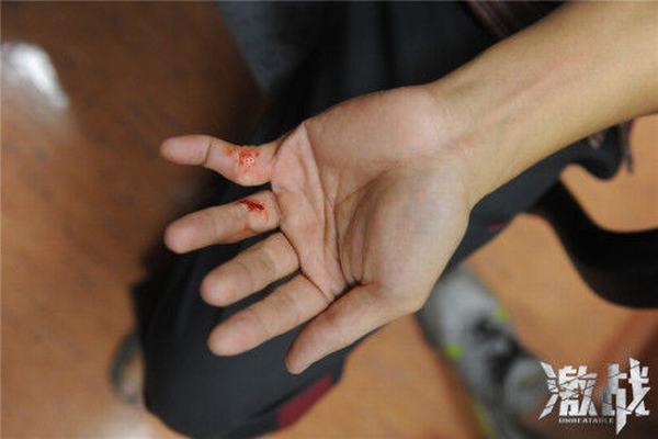 Trương Gia Huy đứt lìa ngón tay vì quyền anh - 9