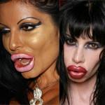 Làm đẹp - Phát hoảng với thảm họa bơm môi