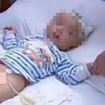 Sức khỏe đời sống - Bé 16 tháng tuổi bị chó nhà cắn rách mặt